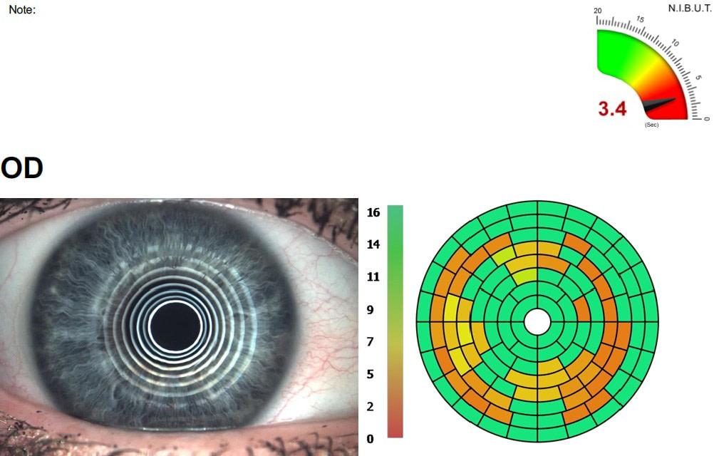podgląd oka podczas badania czasu przerwania filmu łzowego
