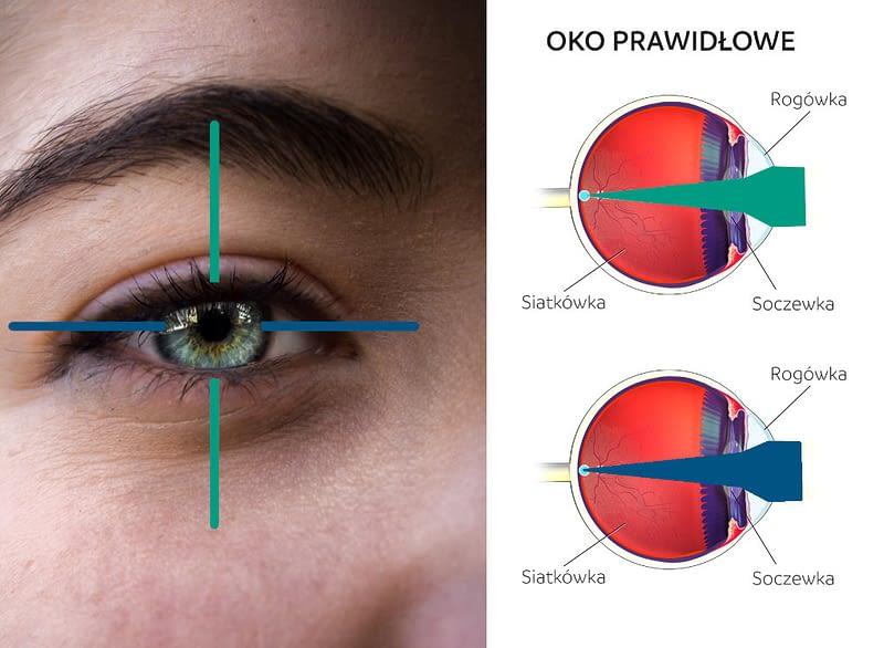 Oko prawidłowe