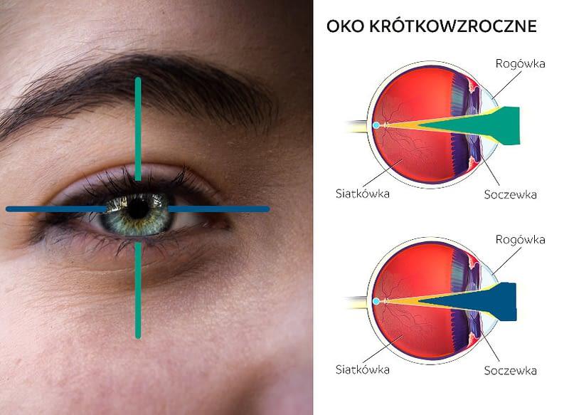 Oko krótkowzroczne