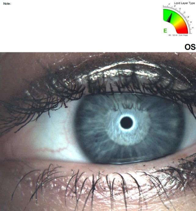 Podgląd oka podczas pomiaru grubości warstwy lipidowej.