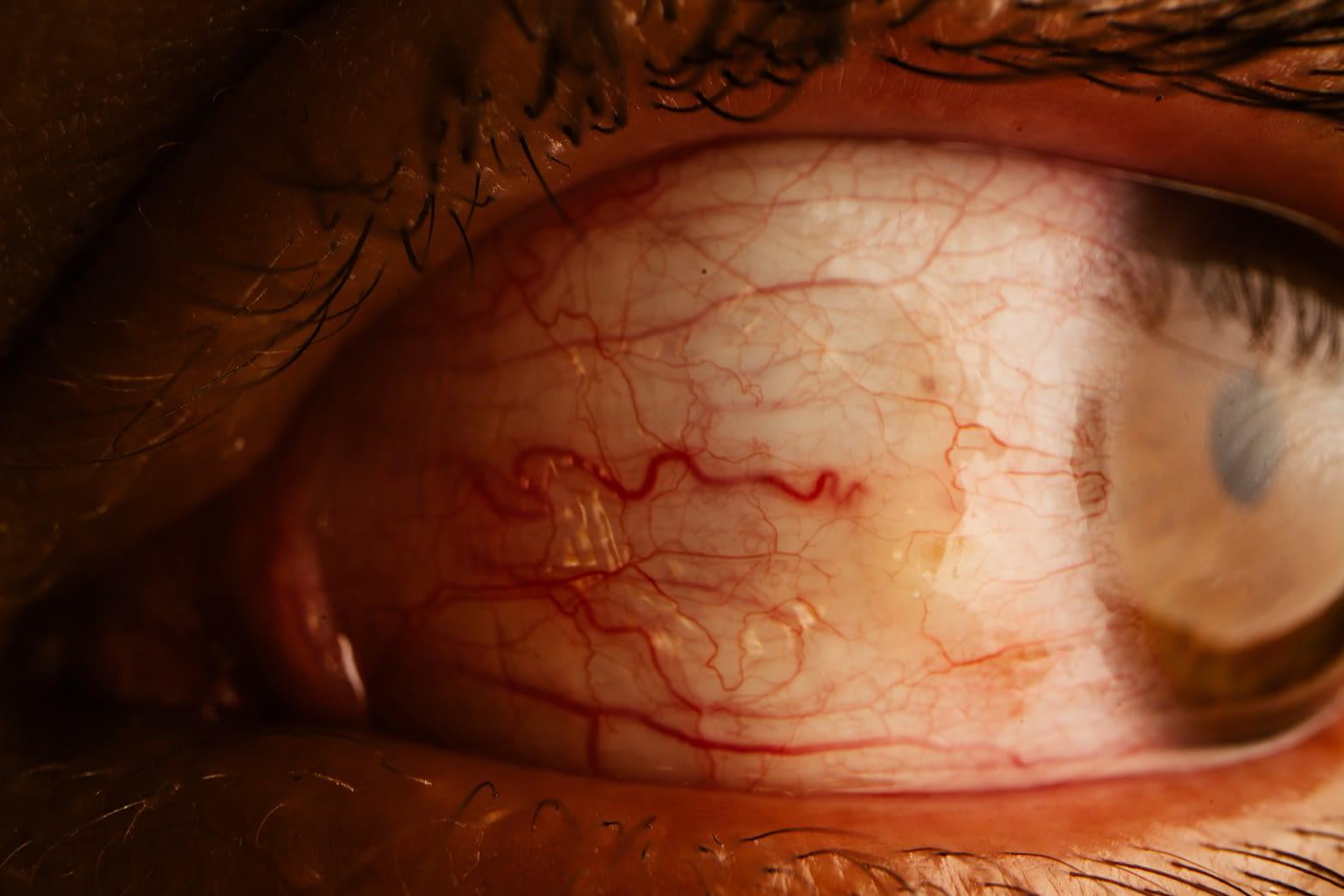 Zbliżenie przekrwionego oka